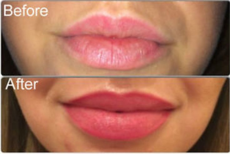 Before and after permanent lip color - actual client