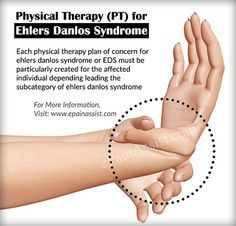 Physical Therapy (PT) for Ehlers Danlos Syndrome or EDS