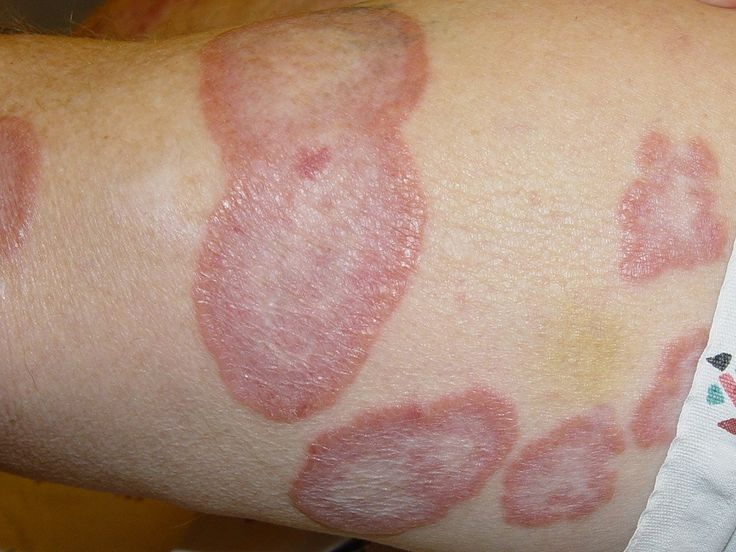 Granuloma annulare is a chronic autoimmune dermatological disorder characterized by papules in the form of reddish bumps forming a ring shape appearance. These reddish bumps are commonly present on...