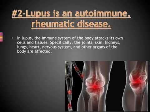 10 Facts You Should Know About Lupus