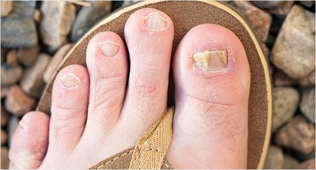 how to get rid of nail fungus with bleach