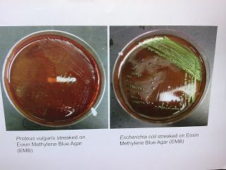 Eosin methylene blue (EMB) is a selective stain for Gram-negative bacteria. It is a blend of two stains, eosin and methylene blue in the ratio of 6:1The morphology of Proteus vulgaris and C.coli on EMB agar.