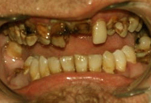 Rotten Teeth - Pictures, Symptoms, Causes, Treatment