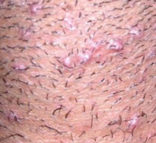 What causes ingrown hair on scrotum? Ingrown hair by definition is a condition where hair curls back or grows sideways into the skin. It is common in people with coarse or curly hair. In most cases, it may or may not be accompanied by folliculitis or razor bumps. In this article we shall tell you