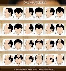 www.kord.gr Этапы облысения у мужчин: классификация по Норвуду отражает этапы истончения (поредения) волос у мужчин: http://goo.gl/F35OHb