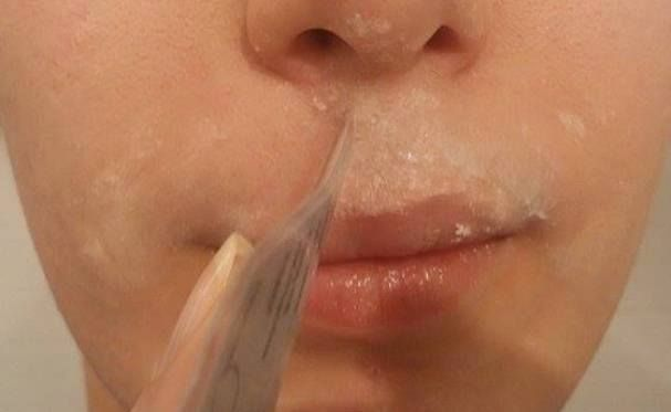 Make Your Facial Hair Disappear Forever With This 15 Minutes Recipe