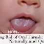 Getting Rid of Thrush: Naturally and Quickly Guest Post By Ashley Grimaldi Oral thrush is a very common infection in infants that causes irritation in and around a baby's mouth. It is caused by the overgrowth of the yeast (a type of fungus) called Candida...