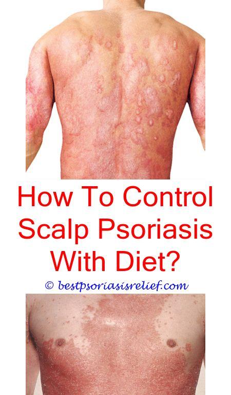 #psoriasisoftheliver pustular psoriasis symptoms - psoriasis chat room.#psoriasisremedies hemp cream for psoriasis manuka honey psoriasis immunotrax psoriasis 7635523403