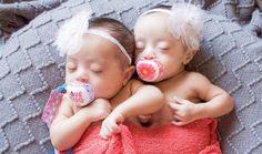 Foto de Laura Duggleby das gêmeas com síndrome de Down. As gêmeas são bebês ainda e idênticas.