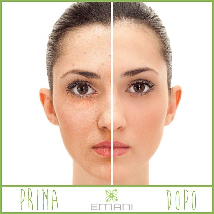 Pelle giovene e impura?  Mamme, Emani è la soluzione per le vostre ragazze, per le teenager e per tutte coloro che hanno una pelle mista e sensibile.  Emani non è soltanto make-up ad alte prestazioni, ma anche trattamento per la pelle privo di agenti irritanti, sostanze chimiche e petrolchimiche, coloranti o fragranze sintetiche. #emani #emaniveganmakeup #veganmakeup #emaniminerals #mineralmakeup #makeup #vegan #beauty #beautyblogger #teenager #acne #skin #skincare #veganlife #toxicfree