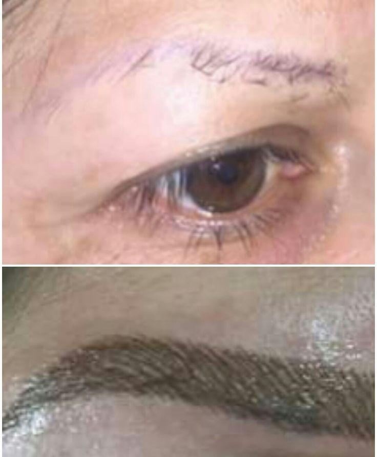 Es una técnica en la que se implanta un pigmento en la primera capa de la piel para darles forma y cuerpo a las cejas.  Consiste en hacer un diseño de las cejas y dibujar vellos para completarlas, en caso de que estos sean muy delgados o escasos. Ayuda a que se vean más definidas. Se utiliza también para cubrir cicatrices.