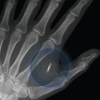 The xNT implantable NFC chip Protótipo de implante programável usando a tecnologia NFC para interagir com objetos .