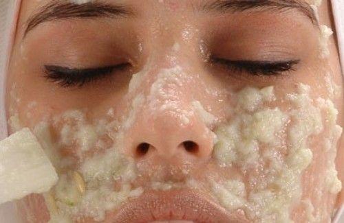 Des crèmes maison contre les taches du visage - Améliore ta Santé
