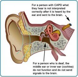 Information and Support for Central Auditory Processing Disorder (CAPD)