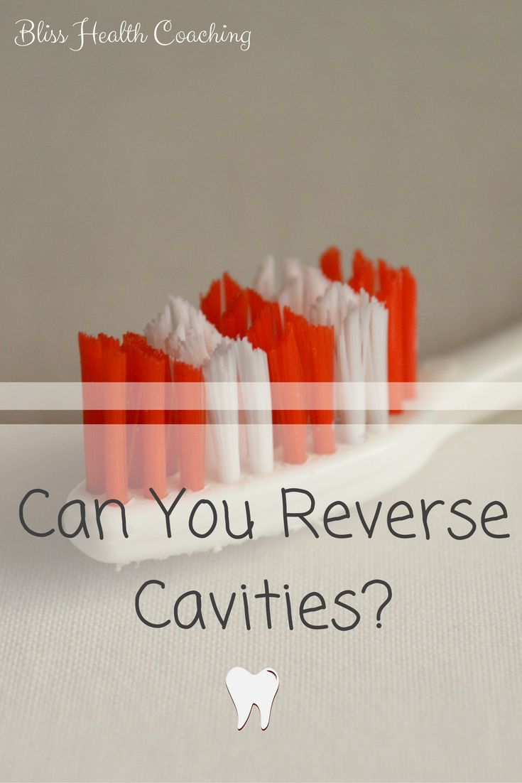 Learn how DIY toothpaste can help reverse cavities!