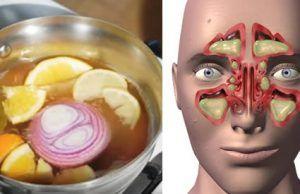 Efectivos remedios contra la sinusitis, la gripe y la congestión nasal