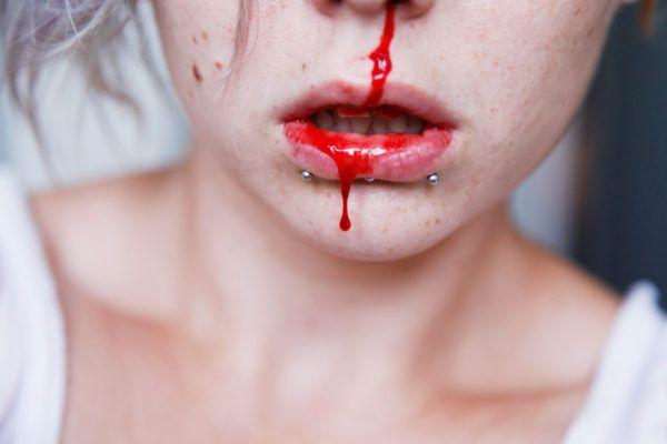 Qué significa soñar con sangre que sale de nariz