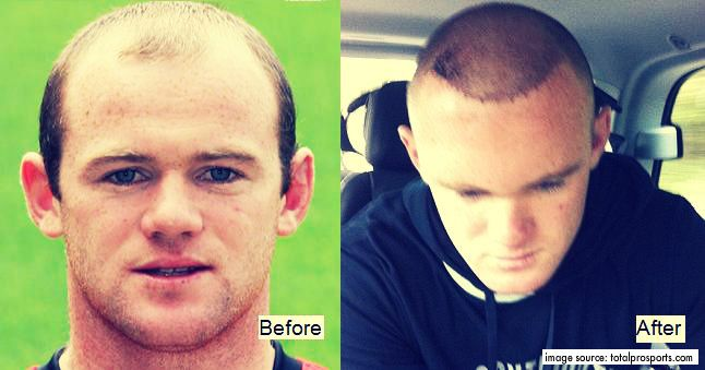 Before and After Wayne Hair Transplant