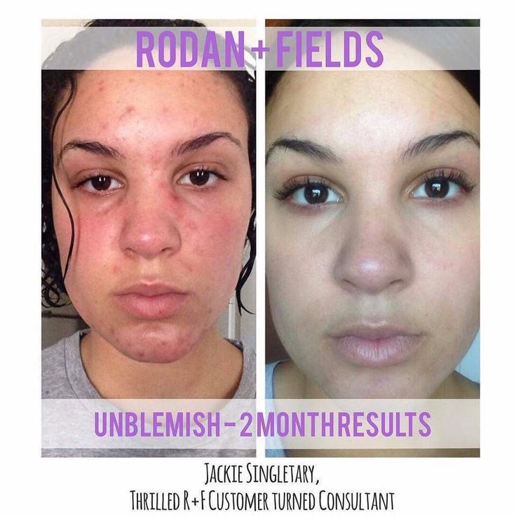 Rodan And Fields Unblemish Before And After Pictures Google Search