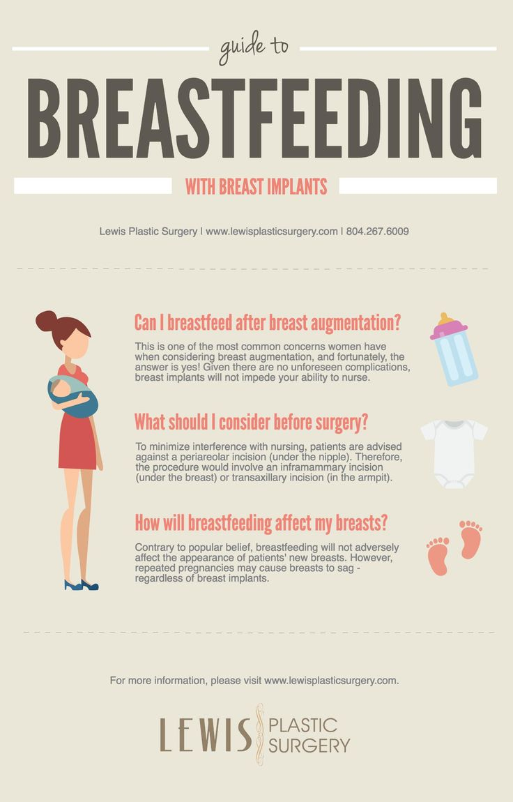 Dr. Gordon Lewis of Lewis Plastic Surgery in Richmond created this Guide to Breastfeeding With Breast Implants to answer your questions about whether or not you can breastfeed, what you should consider before surgery, and how breastfeeding will affect your breasts. Read more here: http://www.lewisplasticsurgery.com/