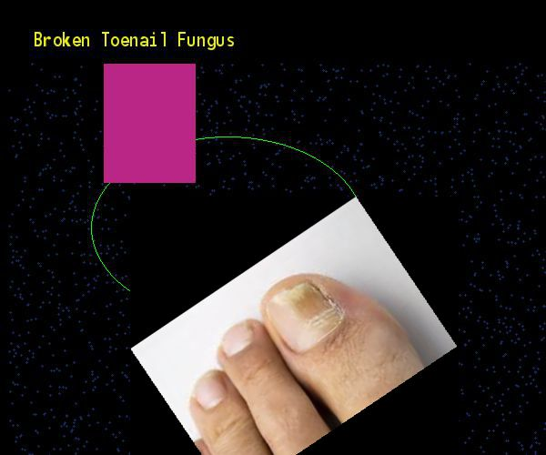 Broken toenail fungus - Nail Fungus Remedy. You have nothing to lose! Visit Site Now