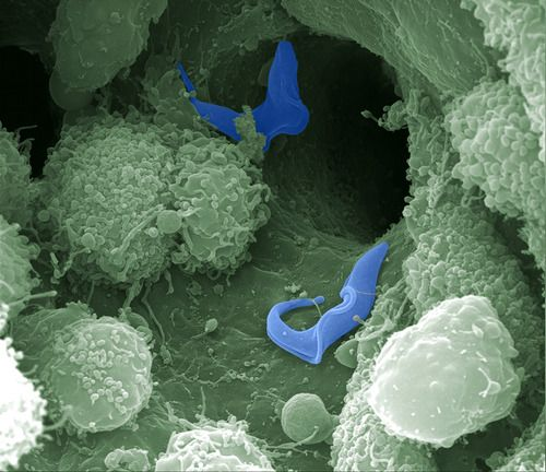 a protozoan parasite Parasitic diseases are diseases transmitted by parasites, usually found in contaminated food, water or bug bites protect yourself with these tips.
