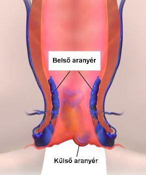 Az aranyér a végbélnyílás nyálkahártyája alatt elhelyezkedő vénás fonatból alakul ki. Az aranyeres csomók a végbél és a végbélnyílás falában keletkező vénatágulatok, melyek begyulladhatnak, vérezhetnek, megnagyobbodhatnak, néha kifordulnak vagy véralvadék képződhet bennük, és ilyenkor fájdalmassá válnak. Attól függően, hogy a végbél záróizmától merre helyezkednek el, külső vagy belső aranyérről beszélhetünk.