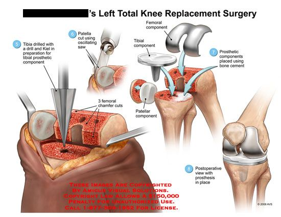 Diagram Of Full Knee Replacement Diy Wiring Diagrams