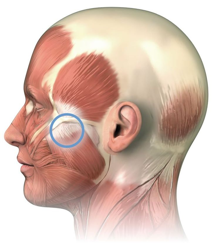 17 best images about neck head pain on pinterest. Black Bedroom Furniture Sets. Home Design Ideas