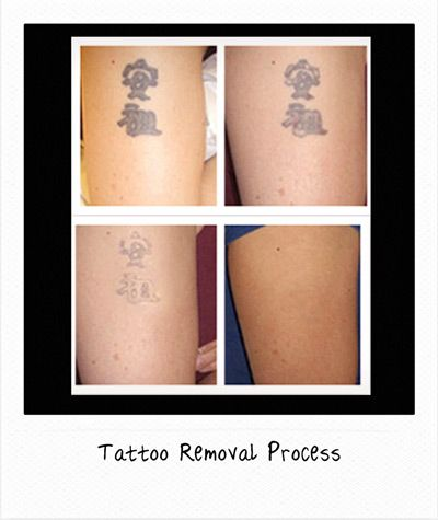 63 best Tattoo Removal Before and After images on ...