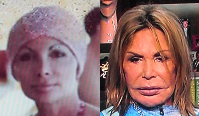 108 Best Images About Plastic Surgery Gone Wrong On