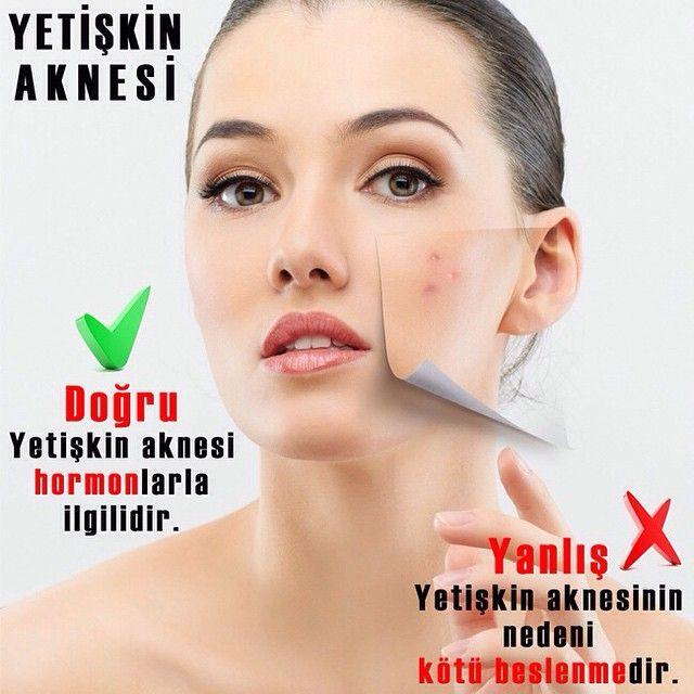 23 best skin care tips images on pinterest skin care tips dry instagram post by newbeauty trkiye newbeautyturkiye acne scarsacne ccuart Gallery