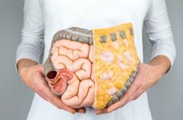 Болезнь Крона - что это такое и симптомы. Лечение и питание при болезни Крона