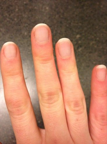 How to remove shellac polish at home - YES finally. I hate having to get it removed
