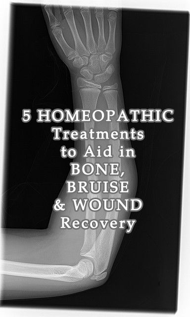 5 Homeopathic Treatments to Aid in Bone, Bruise, and Wound Injury Recovery - Natural Holistic Health Therapies