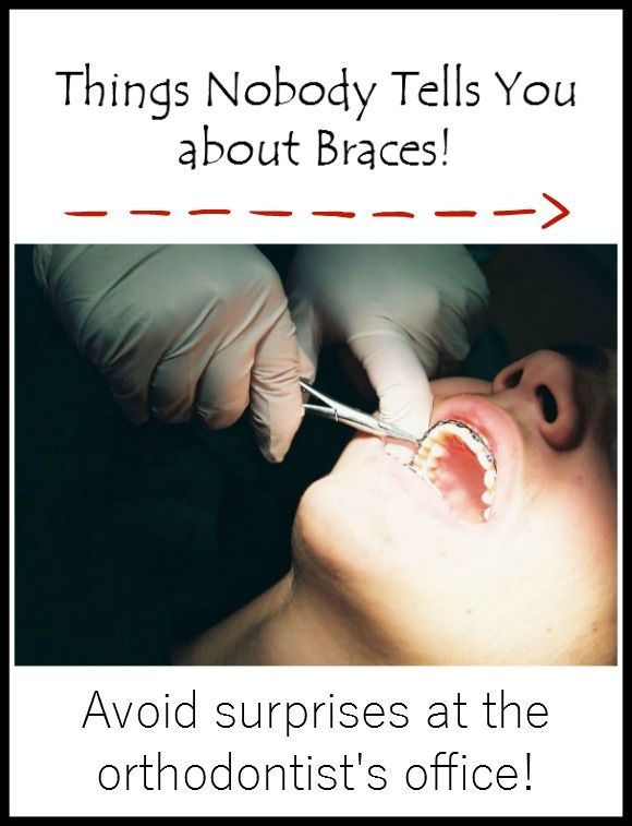 Parenting Tips: Things nobody tells you about braces. Read this story for great tips