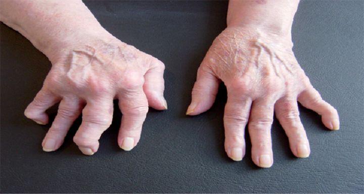 Estes são os 2 melhores e mais baratos remédios para artrite, reumatismo e dores nas costas | Cura pela Natureza