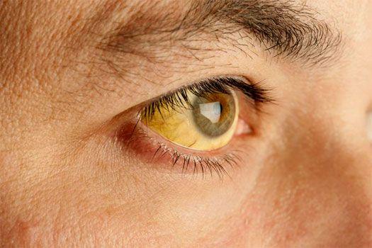 Penyebab Mata Kuning Yang Disebabkan Oleh Gejala Penyakit Lain