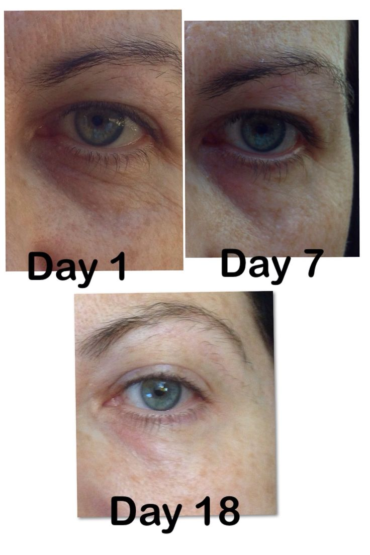 My results from using Uth Rejuvenating creme