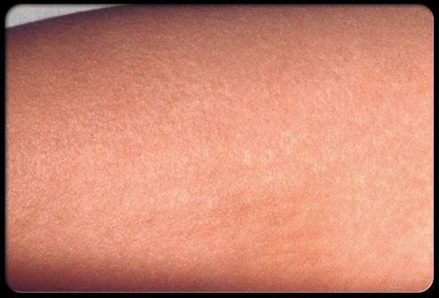 Close-up view of scarlet fever rash.