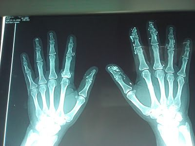 Dr. Maita P: Historias y artículos medicos: Manos calsificadas!!! Depósitos de calcio en manos...