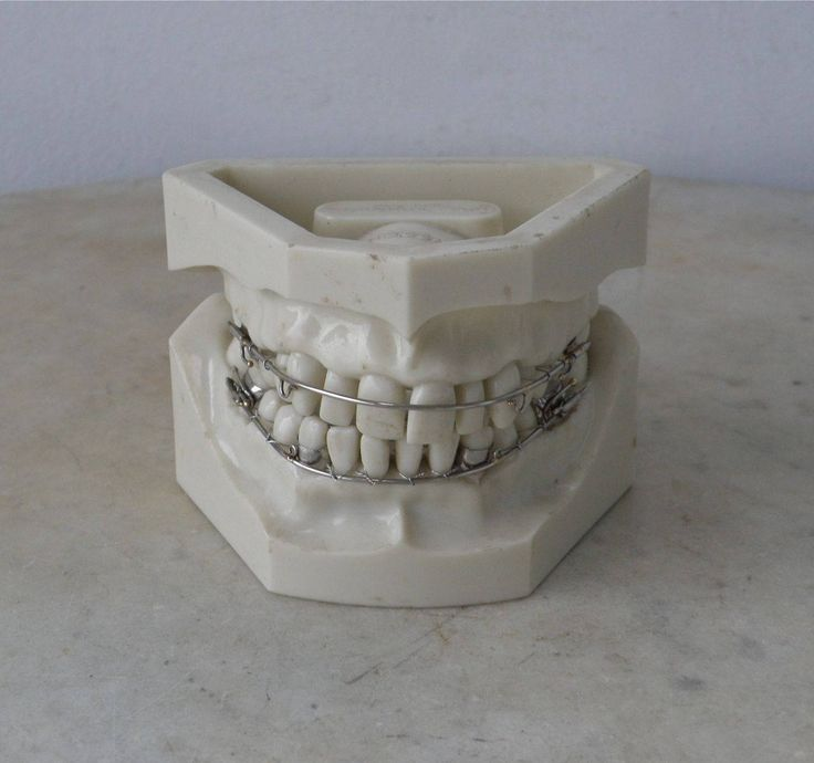 MOLD of TEETH Orthodontia Orthodontics Bite Correction Dental Mold Braces on Teeth Dentistry Overbite Upper & Lower Impressions 1968 by OnceUpnTym on Etsy