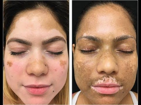 what is vitiligo, white spots on back, how to get rid of white spots on skin, vitiligo photo