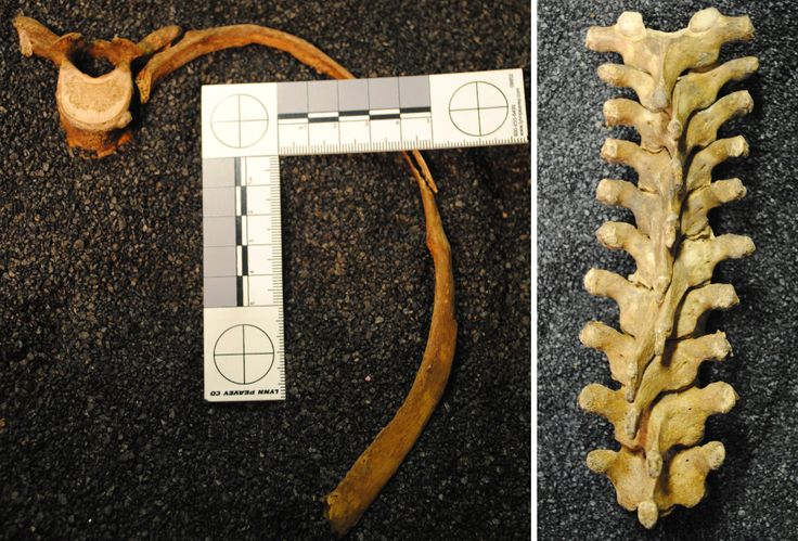 L: Skeleton FAO90 2116 from the Museum of London collection, showing S-shaped deformation of rib and facet of fifth thoracic vertebra. R: Thoracic vertebrae of same skeleton, showing deviation of spinous processes of vertebrae due to corseting.  (Images taken by R. Gibson and used courtesy of the Museum of London.)