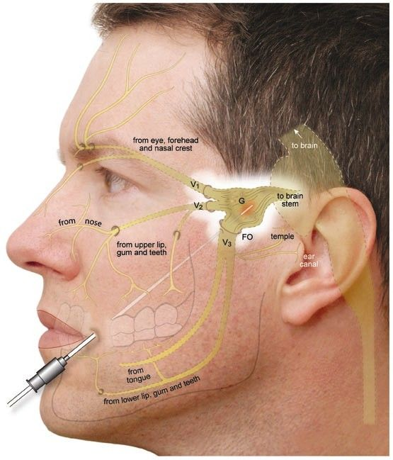 trigeminal neuralgia symptoms | Radiofrequency Rhizotomy (RFR) For Trigeminal Neuralgia HF#6035