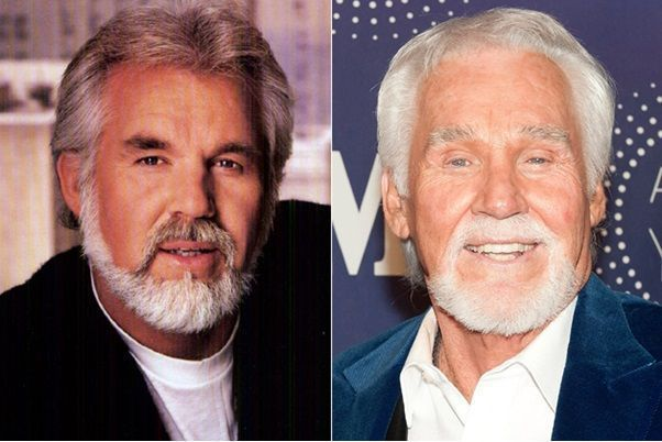 #Kenny #Photos #Plastic #Rogers #Surgery – Kenny Rogers Plastic Surgery Before A…