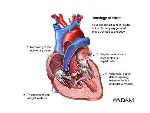 tetralogy-of-fallot-4-638.jpg (638×479) Tetralogia di Fallot - - - - >  Anomalia anatomica con grave o completo ostacolo del tratto di efflusso del VD e difetto del setto ventricolare, che consente al sangue non ossigenato del VD di bypassare l'arteria polmonare e di entrare nel VS e nell'aorta.  Nei neonati affetti da tetralogia di Fallot (v. Fig.261-5), alla nascita o poco dopo, si apprezza un soffio di eiezione da ostacolato deflusso ventricolare destro, a livello del segmento superiore…