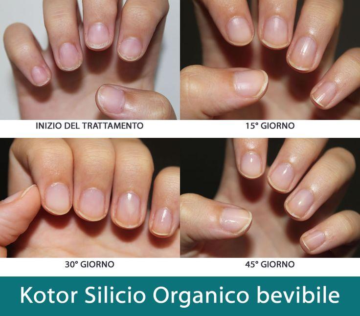 La supplementazione con acido ortosilicico (42,60 mg/ giorno) produce effetti benefici sorprendenti per le unghie: la cura dovrà essere fatta per due mesi, 30 ml di silicio organico liquido al giorno al mattino, a digiuno.