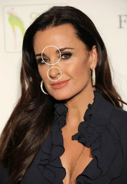 Kyle Richards Plastic Surgery Kyle Richards Plastic Surgery Gone Wrong, Kyle Richards Before and After, Kyle Richards Botox,