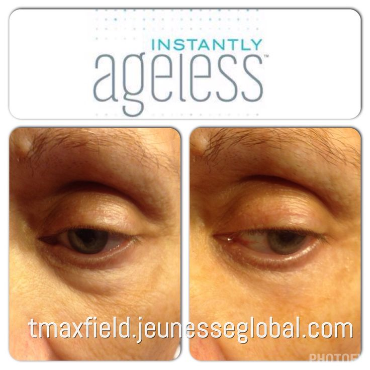 Instantly Ageless by Jeunesse  My moms 2 minute results Take 10 years off in 2 minutes  Eye bags, eye puffiness, anti aging, wrinkles, aging, skin care, Botox alternative  tmaxfield.jeunesseglobal.com